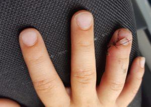 gebroken vinger
